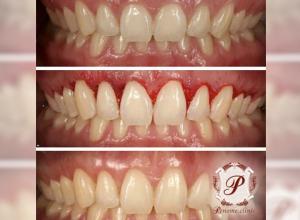 Лечение зубов без боли!