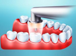 Воздушно-кинетический метод лечения зубов
