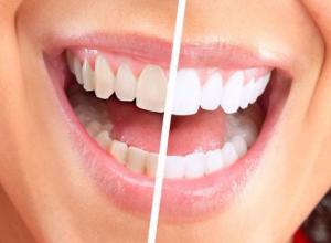 Белоснежную улыбку подарят ростовские стоматологи своим пациентам