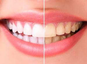 Ростовская стоматология дарит летние скидки для красивой улыбки на долгие годы