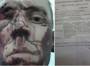 Инвалид из Ростова обвинил охранников в избиении из-за звонка в магазине «585»
