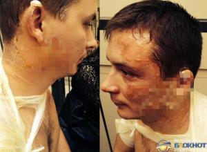 В Новочеркасске студенту вылили на голову ведро кипятка
