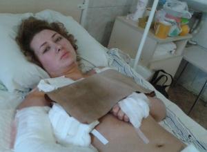 23-летнюю девушку, оставшуюся без руки и ноги после взрыва в Донецке, доставили в Ростов