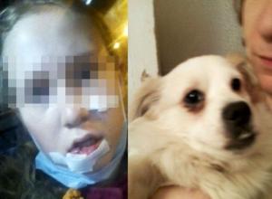 Разъяренная домашняя собака до крови искусала девочку в Ростове
