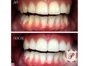 Отбеливание зубов в Ростове-на-Дону