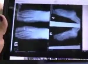 Три молодые женщины стали инвалидами после простейшей операции в больнице Ростова