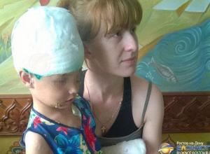 В Ростовской области собака, напав на 5-летнюю девочку, сорвала ей скальп и откусила два пальца. Видео