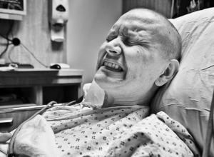 Онкозаболевания стали наиболее частой причиной смерти жителей Ростова