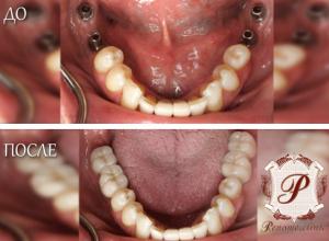 Новогодние скидки на имплантацию и протезирование зубов