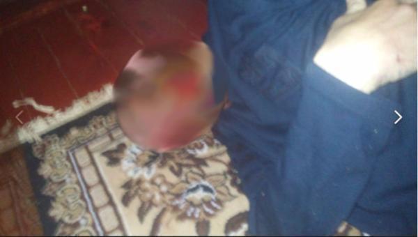 Ребенок обнародовал фото всоцсети субитым иммужчиной