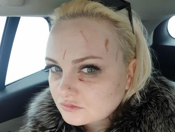 Держал за волосы, ударил головой о машину: трое ростовчан жестоко избили девушку