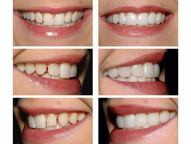 Весеннюю акцию «Идеальная улыбка» объявили стоматологи Ростова