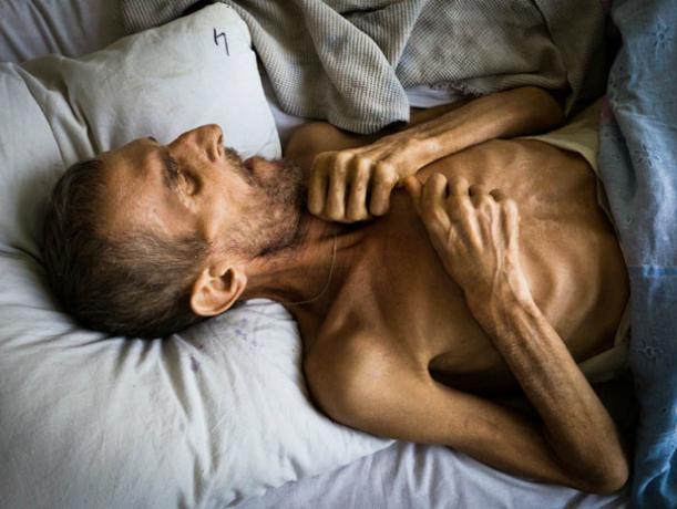 Страшная болезнь туберкулез стала чаще атаковать жителей Ростова