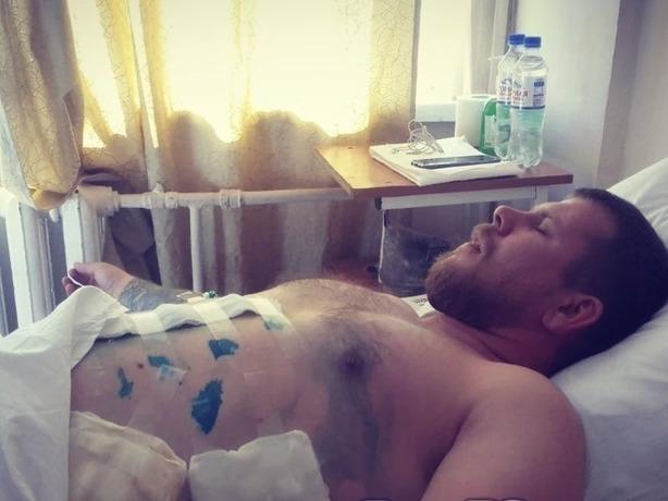 Смелый парень в Ростове защитил незнакомую девушку от пьяного психа и оказался в реанимации