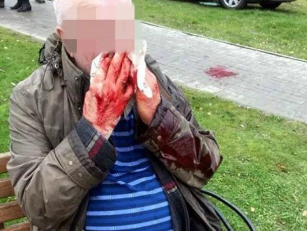 Участники гаражного кооператива жестоко избили своего председателя во время собрания в Ростове